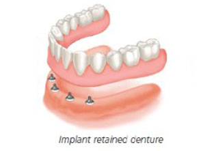 Dental Implants Centre Punjab