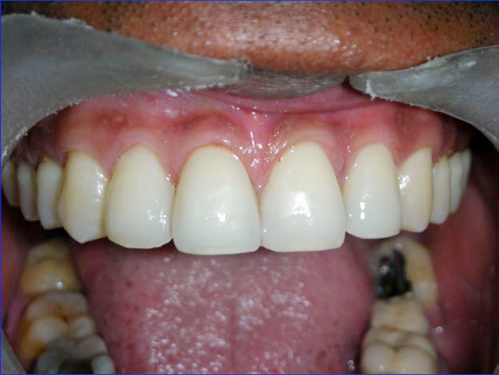 Cosmetic Dentistry Treatment Clinic in Jalandhar